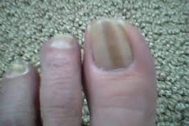 dark vertical lines in fingernails how you can do it at home