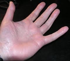knoten handinnenfläche wie behandeln dupuytrensche kontraktur de dupuytren ledderhose