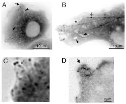 Inverted Living Differential Trafficking Of Kif5c On Tyrosinated And Detyrosinated