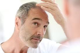stop womens chin hair growth hair loss treatment lloydspharmacy online doctor uk