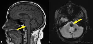 Brainstem Mass Cerebral Cavernomas A Cause Of One And A Half Syndrome