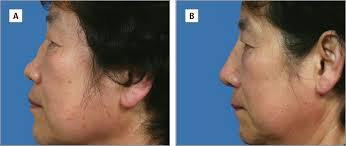 saddle nose correction jama plastic surgery the jama