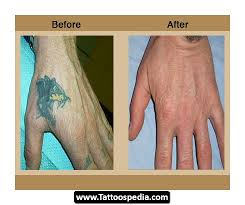 laser tattoo removal nyc 28