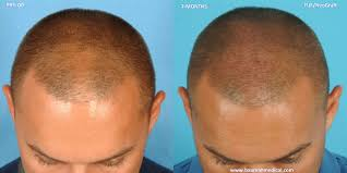 New Hair Loss Treatment August Is National Hair Loss Awareness Month New Treatments And