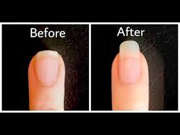 Diy Flesh Light Diy Nail Growth Recipe Nail Growth In 5 Days Styledbyaishyee