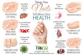 10 nail symptoms and what they mean for your health guide for