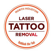 north houston laser tattoo removal tattoo removal 17115 red