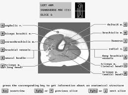 Mri Sectional Anatomy Mri Arm Forearm Anatomy Dr Ahmed Eisawy Youtube