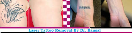 permanent tattoo removal treatment by laser in chandigarh at