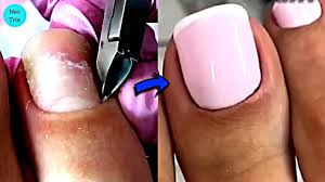 french tip pedicure transformation on toenails french feet nails