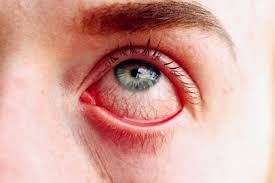 identifying types of eye discharge u0026 mucus