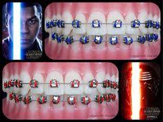 Comfort Dental Orthodontics Bakersfield Ca Orthodontic Fact 2 The First Ever Certified Orthodontist In The