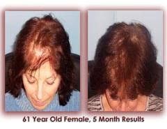 hair loss in 60 year old woman 100 effectiveness at stopping hair loss and 60 in regrowing hair