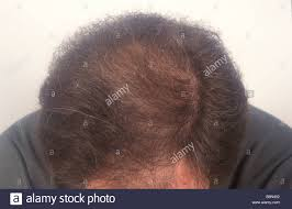 thinning hair in women on top of head detail of the top of a man s head showing thinning hair on the