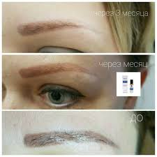 rejuvi tattoo removal examples u2013 semi permanent makeup by dasha