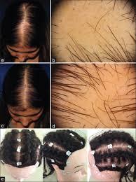 patchy traction alopecia mimicking areata barbosa ab donati a