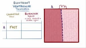 pulmonic stenosis cardiovascular disorders merck manuals