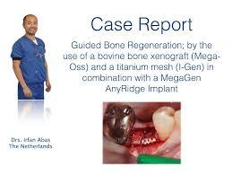 guided bone regeneration minec