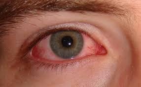 Map Dot Dystrophy Amniotic Membrane Eye Surgery Olympia Fields U2013 Southland Eye