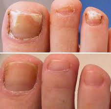 laser toenail fungus removal los angeles podiatrist and foot doctor