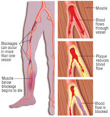 Foot Vascular Anatomy Repairing Arteries And Veins Which Are Diseased Stryker