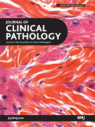 vascular invasion and other invasive features in granular cell