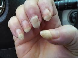 manicure care of your hands and nails nail care guidelines nail damage and chemotherapy nail loss split