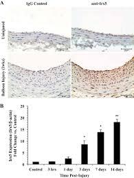 iroquois homeobox transcription factor irx5 promotes g1 s phase