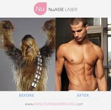 Meme Hair Removal - nuagelaser vancouver laser hair removal skin tightening