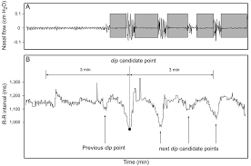 cyclic variation in heart rate score by holter electrocardiogram