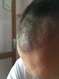 Candida And Hair Loss Rate My 3261 Grafts Fue By Dr Demirsoy Hairlosstalk Forums
