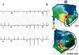 Ccw Map Surface Electrocardiographic Characteristics Of Right And Left
