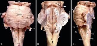 Brain Stem Anatomy Brain Stem Radiology Key