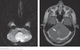 Brainstem Mass Chapter 7 The Brain Stem And Cerebellum Clinical Neuroanatomy