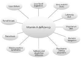 Night Blindness Caused By Vitamin A Deficiency Vitamin A And The Eye An Old Tale For Modern Times