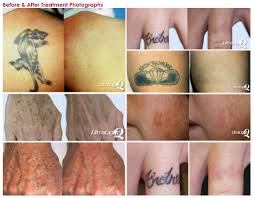 tattoo temoval before and after pictures tattoo removal tattoo