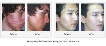 green light laser treatment dr ko clinic
