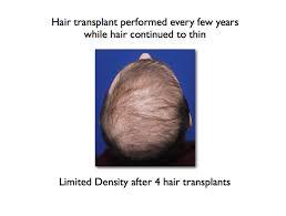 transplant hair second round draft hair transplant limitations ny hair loss
