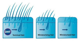 what gets rid of dht in body men stop thinking your hair loss is due to high testosterone