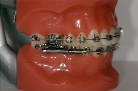What Does An Orthodontic Assistant Do Otago Orthodontics