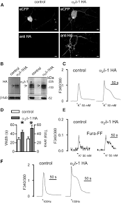 the upregulation of α2δ 1 subunit modulates activity dependent