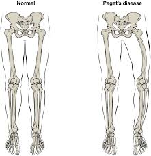 Appendicular Skeleton Worksheet 6 3 Bone Structure Anatomy And Physiology