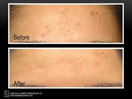 Blu U Before And After Focus On Aesthetics This Month U0027s Feature Photodynamic Therapy