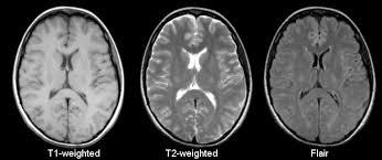 Axial Mri Brain Anatomy Mri Basics