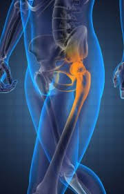 hip bursitis treatment orange county hip pain physical therapy pts