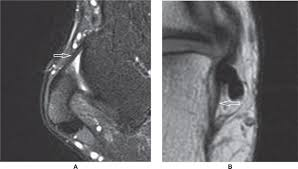 Ankle Ligament Tear Mri 25 Magnetic Resonance Imaging Of Foot And Ankle Pathology