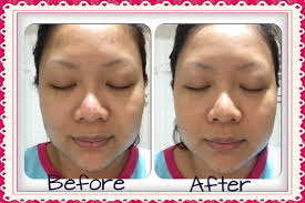 body makeup for acne scars images
