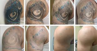 the modern age technic laser tattoo removal tattoo team
