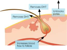 what gets rid of dht in body removes dht unblocks pores and increases blood circulation to the