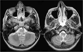 Axial Mri Brain Anatomy Mri Brain On Day 6 Of Admission Axial T2 Weighted Image Open I